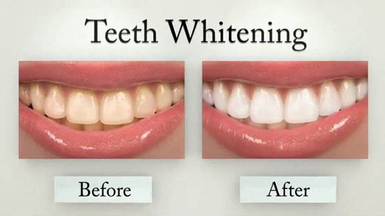 Teeth Whitening: The Dos and Don'ts