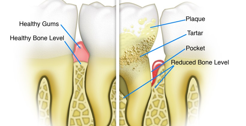 Do You Have Bleeding Gums? Then You Need To Read This Article On Periodontal Diseases
