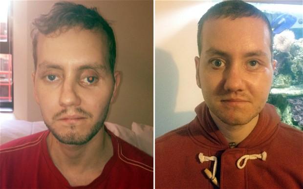 Le reconstruyen la cara con impresoras 3D y el resultado es sorprendente - impresion-3d
