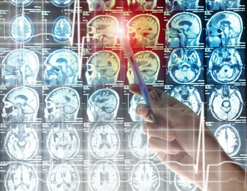 """infarto cerebral Diseñan un sistema que """"interroga"""" y muestra cómo reaprende el cerebro"""