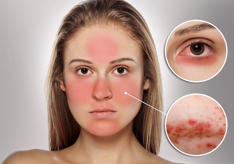 Ácaros, detonantes de enfermedad que provoca piel roja en el rostro - acaros-enrojecimiento-en-el-rostro
