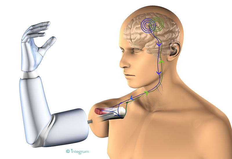 Mexicano diseña primera prótesis con conexión directa a hueso, nervios y músculos - protesis-con-conexion-directa-al-hueso