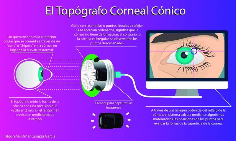 Investigador mexicano crea topógrafo corneal de alta competitividad - topografo-corneal-conico