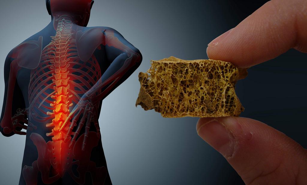 En busca de un tratamiento contra la osteoporosis a partir del agave tequilero - tratamiento-contra-la-osteoporosis-a-partir-del-agave-tequilero