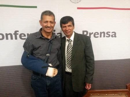Se realizó en México el trasplante de brazo más grande del mundo