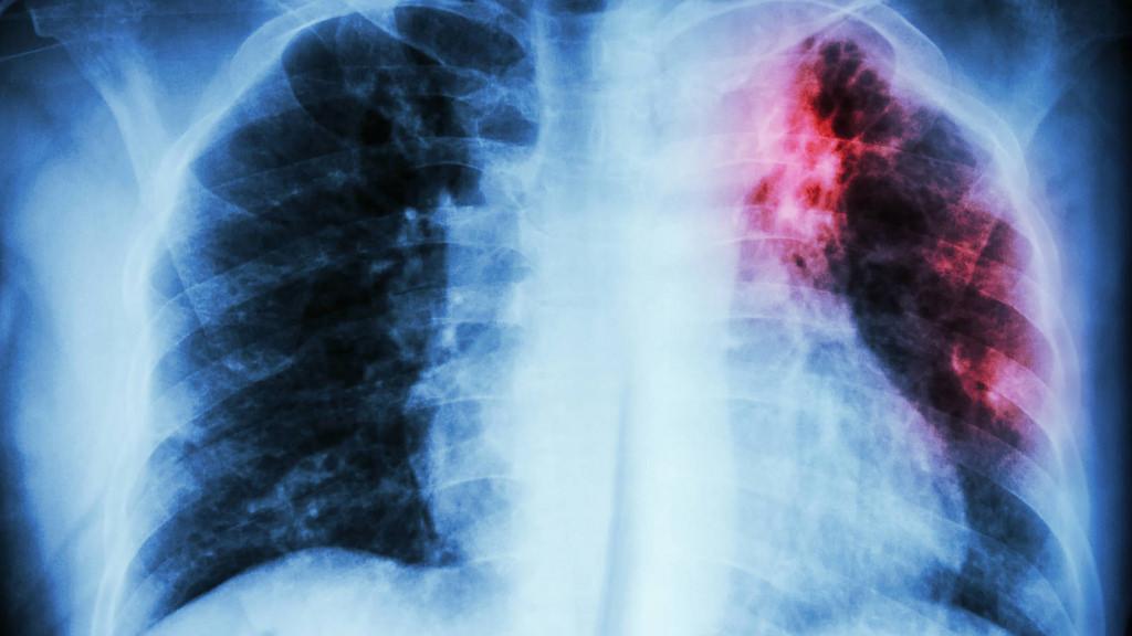 Científica mexicana en Alemania incursiona en soluciones fisiológicas a la fibrosis pulmonar - fibrosis-ideopatica-pulmonar