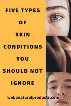 five types of skin conditions you should not ignore blog post