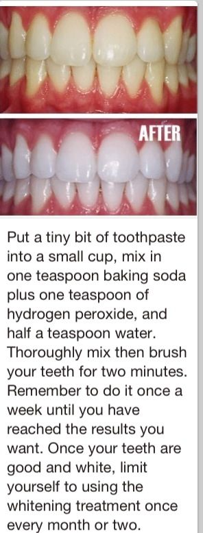 This is actually really effective! Ive done it a couple of times and I can se