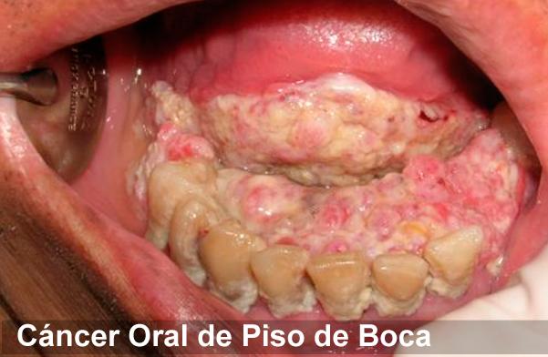 la lengua oral:
