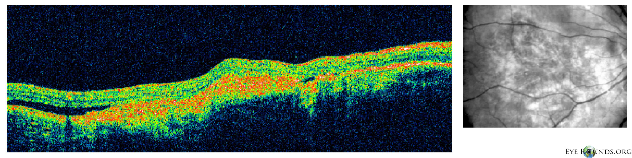 Choroidal Osteoma Online Atlas Of Ophthalmology The