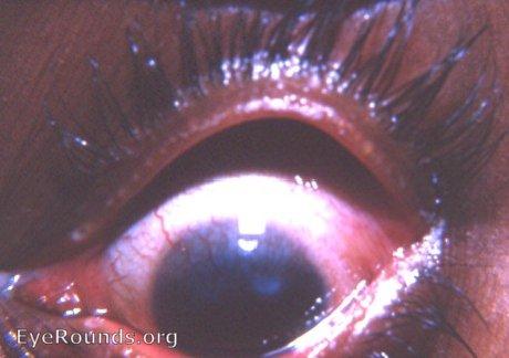 Trachoma EyeRoundsorg Online Ophthalmic Atlas