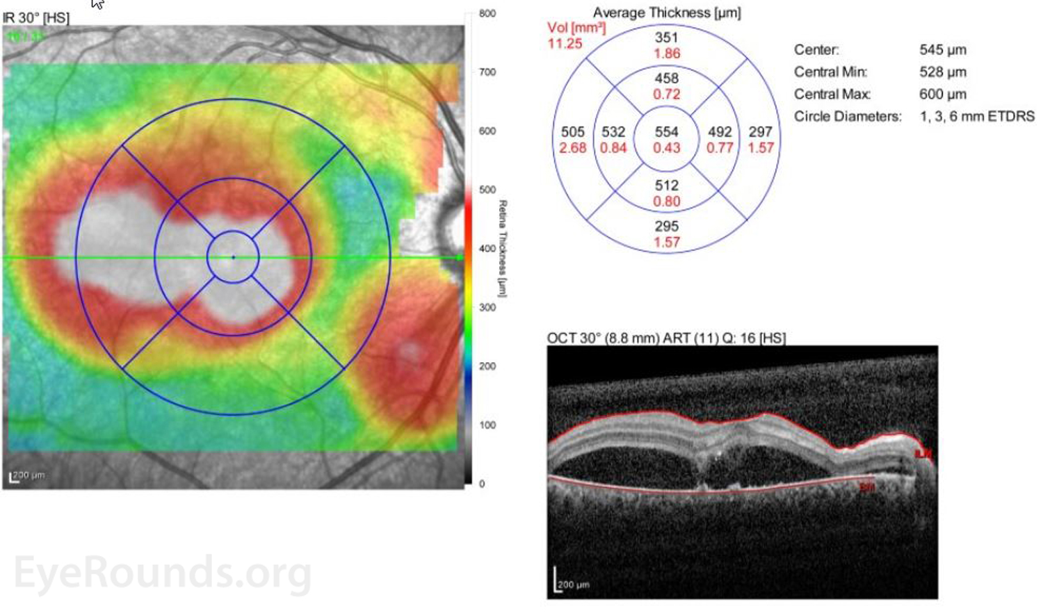 Bilateral serous retinal detachments from acute