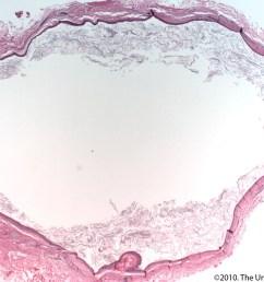 cyst on earlobe diagram [ 1600 x 1200 Pixel ]