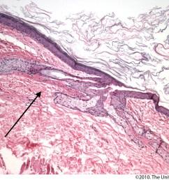 cyst on earlobe diagram [ 1600 x 1238 Pixel ]