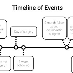 Diagram Of Artificial Eye 2004 Sterling Wiring Enucleation And Evisceration What To Expect A Typical Timeline Events Portraying Will Happen Before On The Day Figure 1