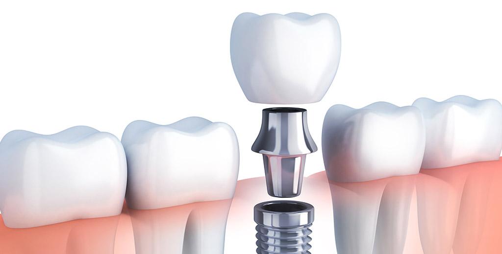 Dental Implants in Aahmedabad