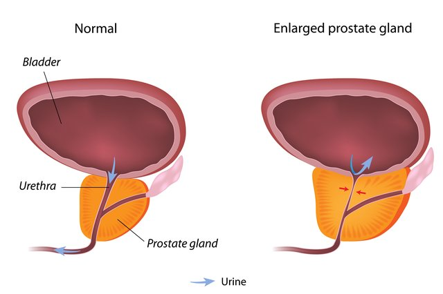The Prostate Protocol Review