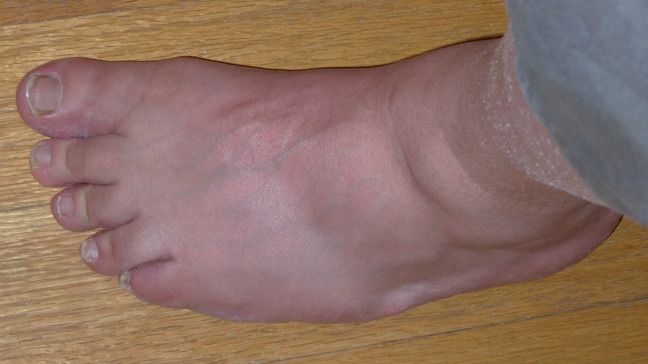 The End of Gout Reviews