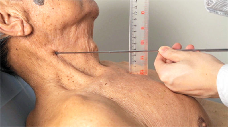 Jugular venous distention, a sign of right-sided heart failure, suggests hepatic congestion .