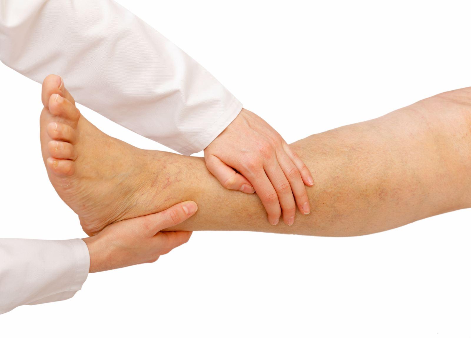 visszérrel a lábak megduzzadnak, mint kezelni