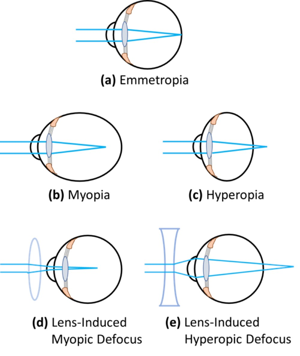 medium resolution of exaggerated representation of simple refractive errors caused by abnormal eye growth emmetropia normal vision is the state of refraction in which light