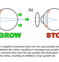 figure 6 affixing a negative concave or diverging lens over the eye pushes the focal plane of the visual image behind the retina inducing an increase in  [ 1409 x 875 Pixel ]