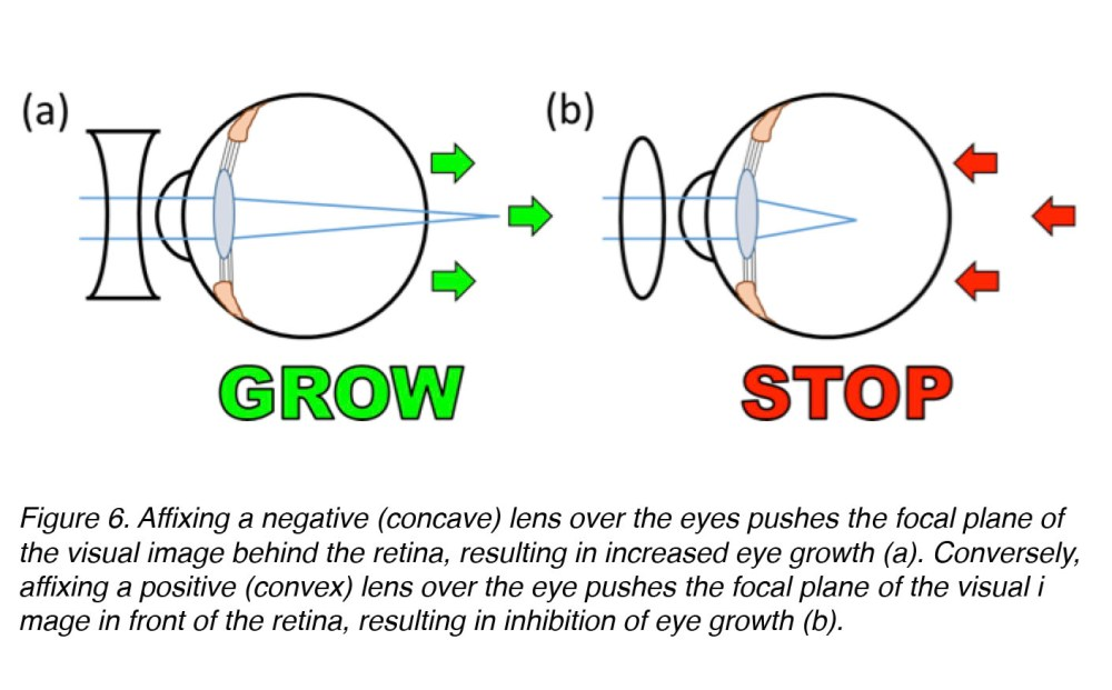 medium resolution of figure 6 affixing a negative concave or diverging lens over the eye pushes the focal plane of the visual image behind the retina inducing an increase in