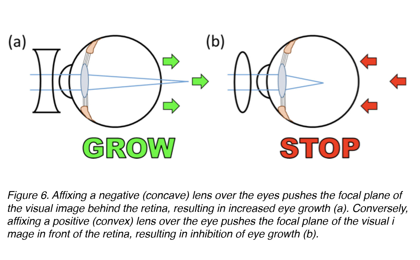 hight resolution of figure 6 affixing a negative concave or diverging lens over the eye pushes the focal plane of the visual image behind the retina inducing an increase in