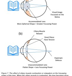 figure 7 the effect of ciliary muscle contraction or relaxation on the focussing power of the lens when the ciliary muscle is contracted the lens becomes  [ 1375 x 2029 Pixel ]