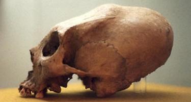 elongated_skull