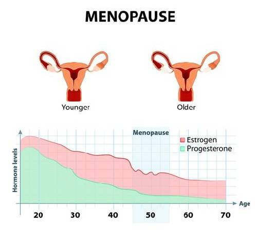 Many Nigerian Women Mistaking Menopause Symptoms For Typhoid – Experts