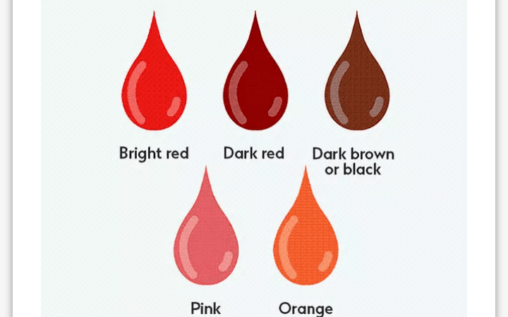 Female Health: 5 Menstruation Blood Colors And Its Implications, How To Treat It