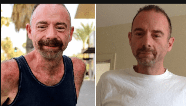 SAD!! First Man Ever To Be Cured Of HIV Dies Of Cancer 25 Years Later
