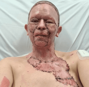 'No way, I love you', Man Says After Wife Whose Face Was Horrifically Burnt Gave Him Permission To Leave Her (Photos)