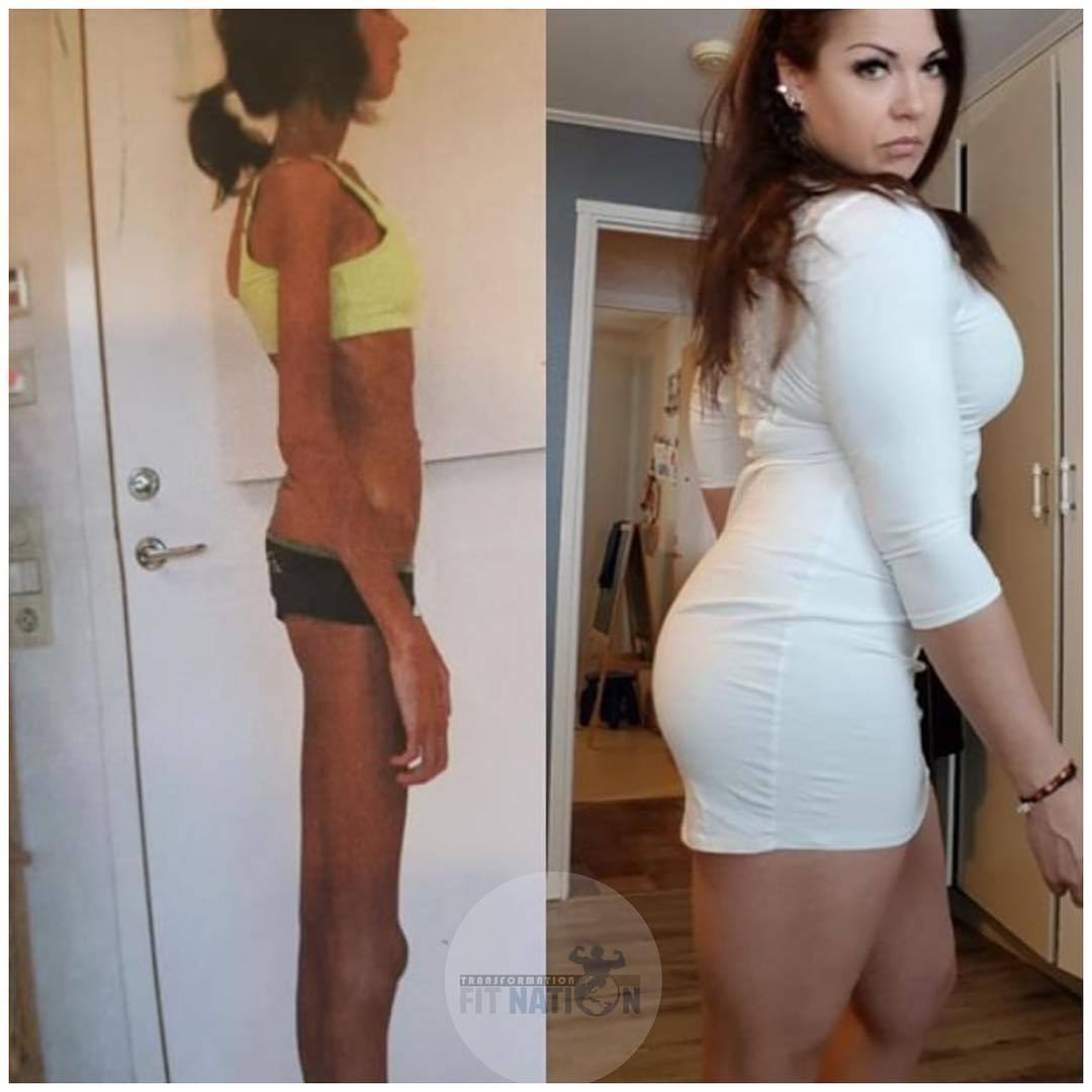 anorexia before and after
