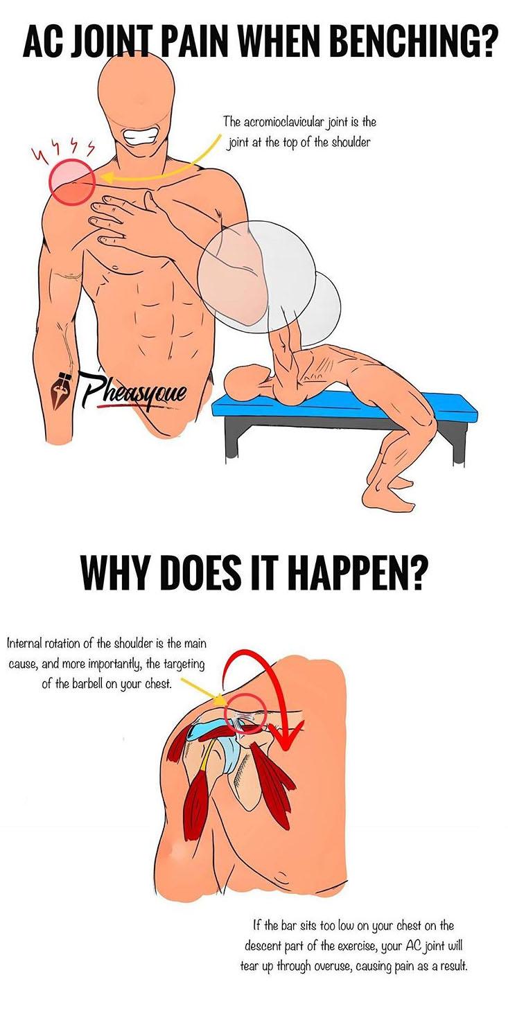 Ac Joint Pain When Benching Weighteasyloss Com