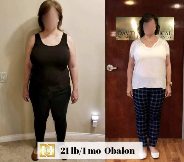 Bariatric Surgery Before And After With Obalon Gastric Balloon At Weight Loss Surgery Center Of Los Angeles
