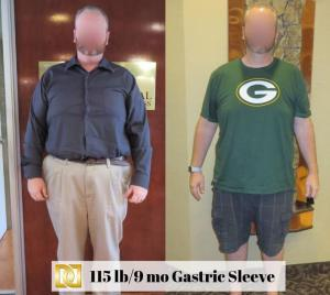 Bariatric Surgery Before And After Gastric Sleeve Weight Loss Surgery Center Of Los Angeles Beverly Hills Glendale Rancho Cucamonga