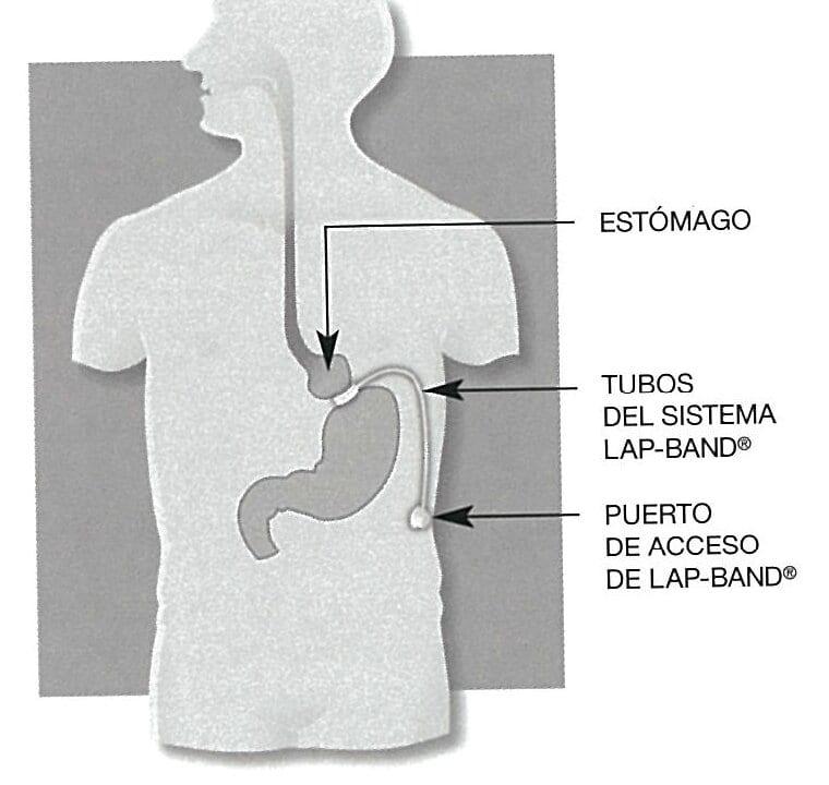 Lap Band Espanol-Weight Loss Surgery Los Angeles
