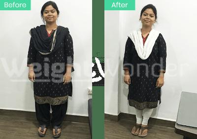 Deepika Raikwar (Lost 10kgs)