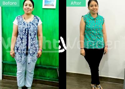Divya Assudani (Lost 12kgs)