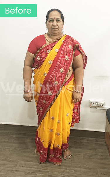 Before-Dropda Palasia (Lost 28.2kgs)