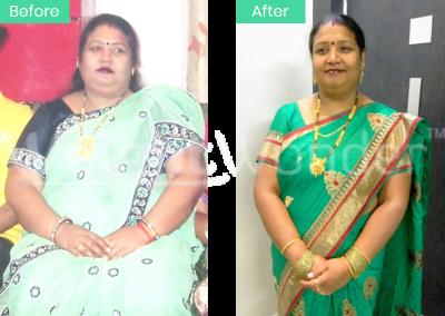 Neetu Singh (Lost 27kgs)