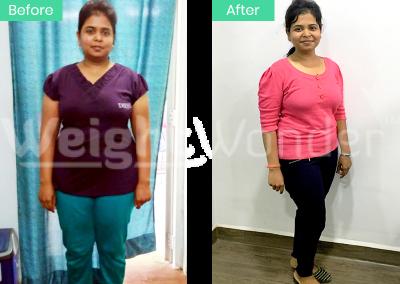 Veenu Majarde (Lost 20kgs)