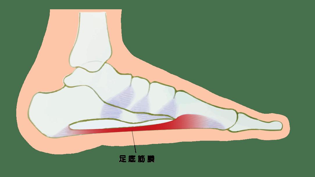 足底筋膜炎 – 徐上德復健科診所