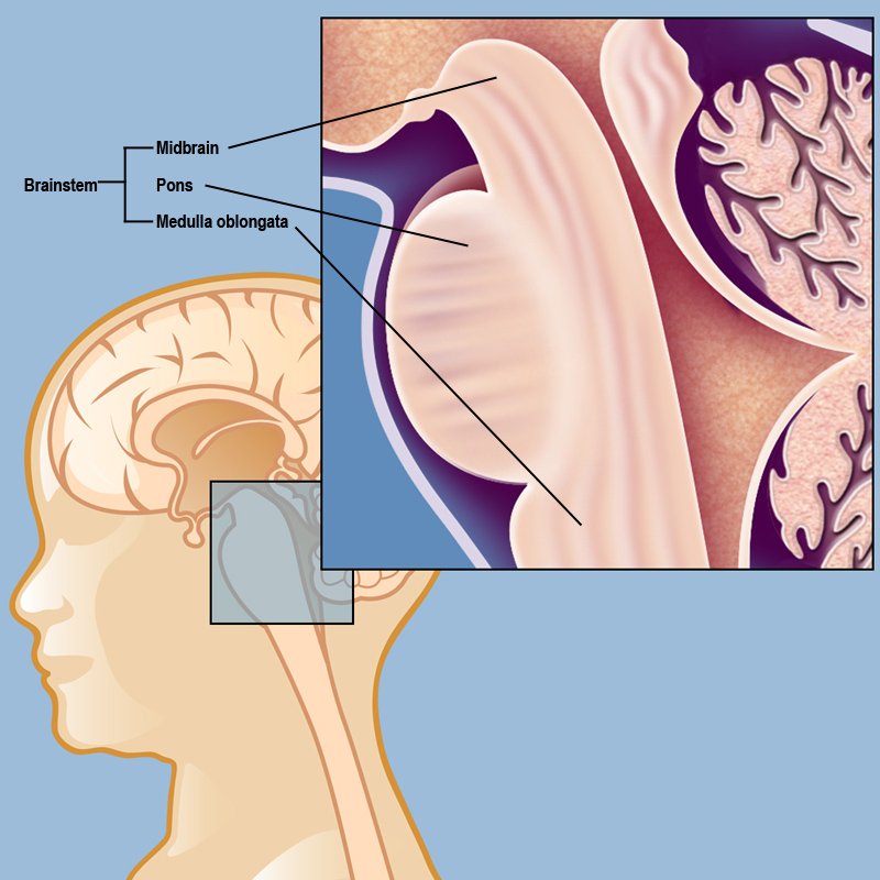 brain diagram pons sony xplod 100db wiring diffuse intrinsic pontine glioma dipg weill cornell and the brainstem consists of three parts midbrain medulla oblongata is a meaning that it develops in