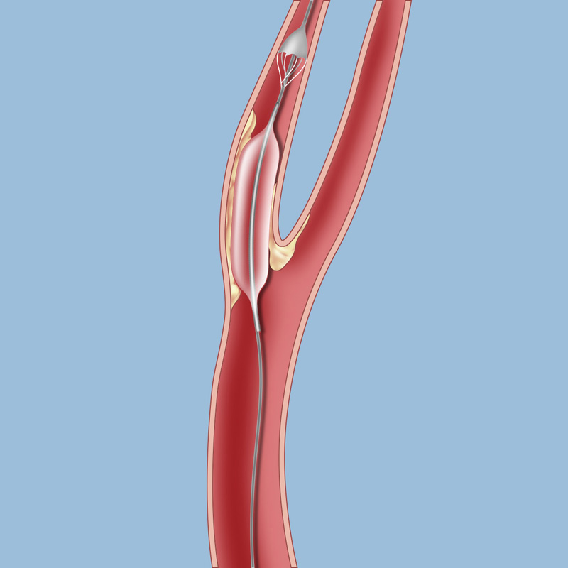 Surgery For Carotid Occlusive Disease