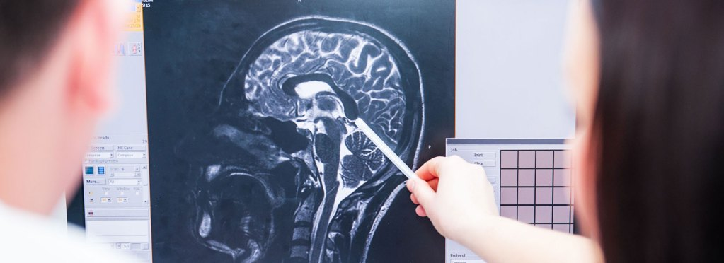 Discovering traumatic brain injury long after a car accident