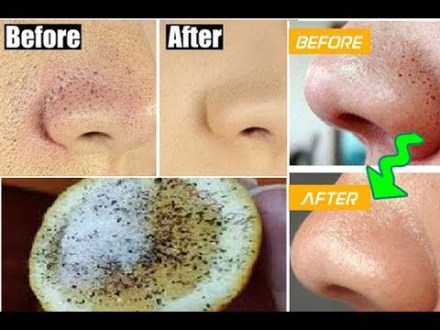 How to Get Rid Of Blackheads, Moles and Warts Fast At Home
