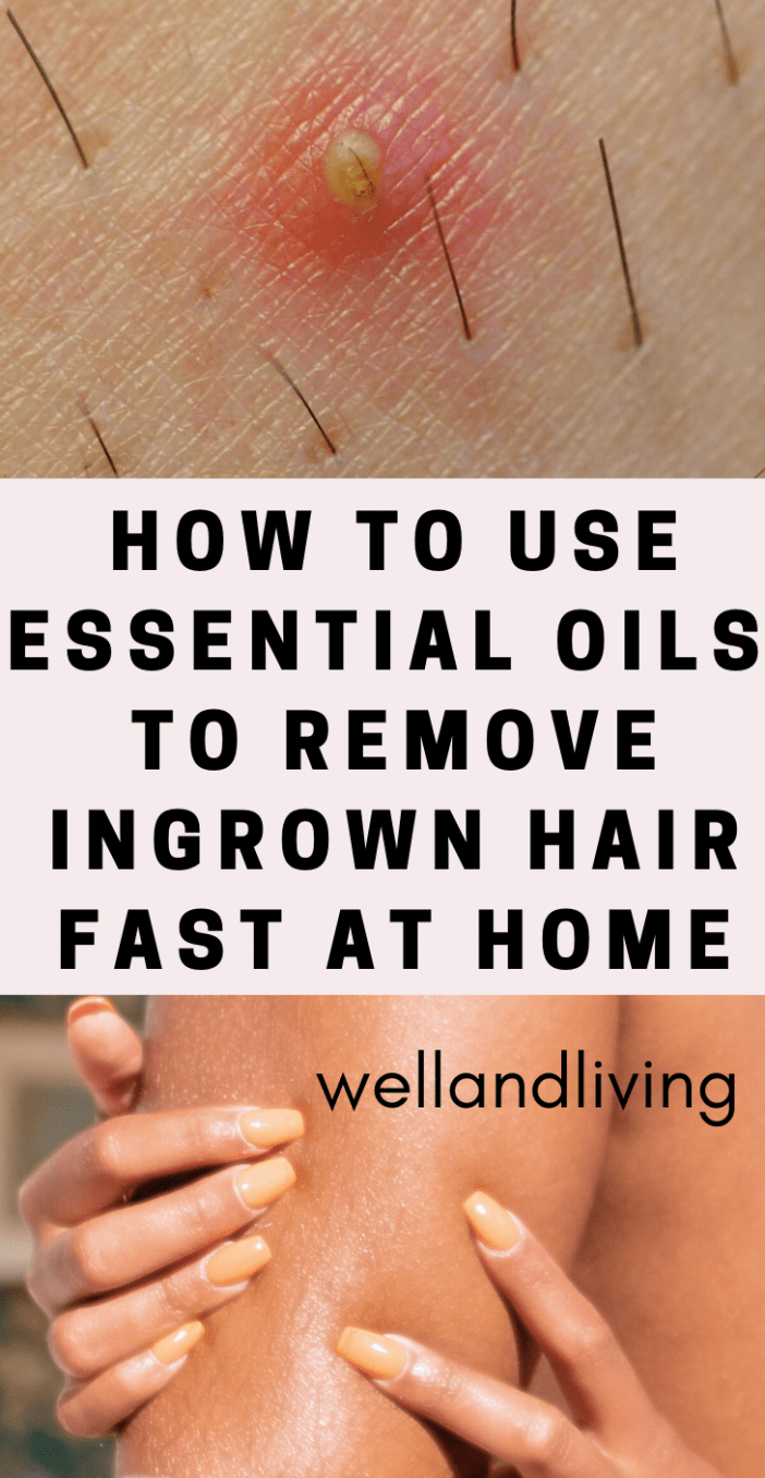 How to Use Essential Oils to Get Rid Of Ingrown Hair Fast At Home